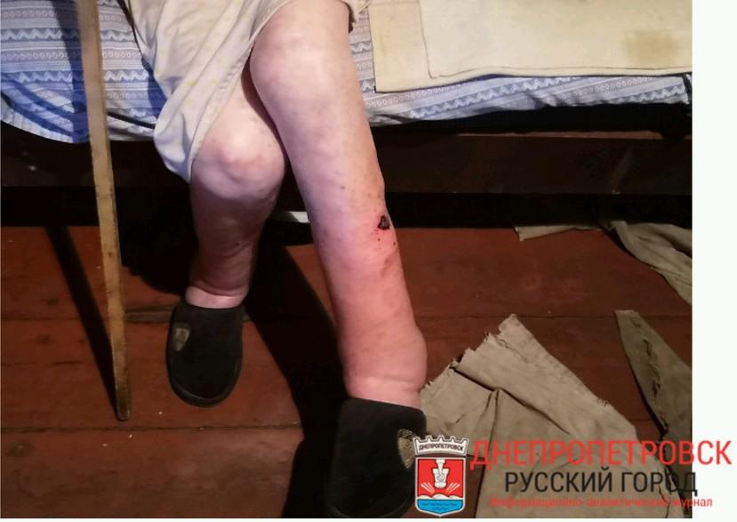 Ноги бабушки в отеках и ранах. Фото: Юлия АНДРИЕНКО