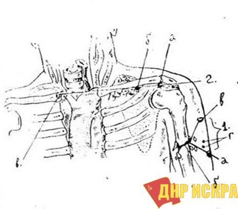Рис. 1. Схема ранений В.И. Ленина: