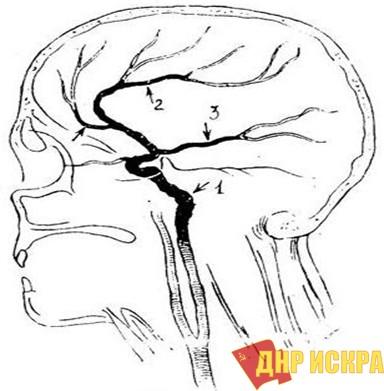 Рис. 2. Схема атеросклероза левой сонной артерии у В.И. Ленина: